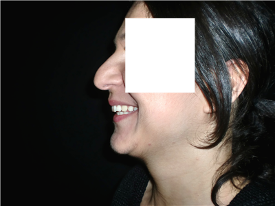 smilingnosebf